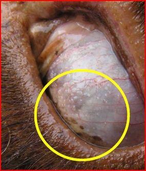 Cancer de l'oesophage